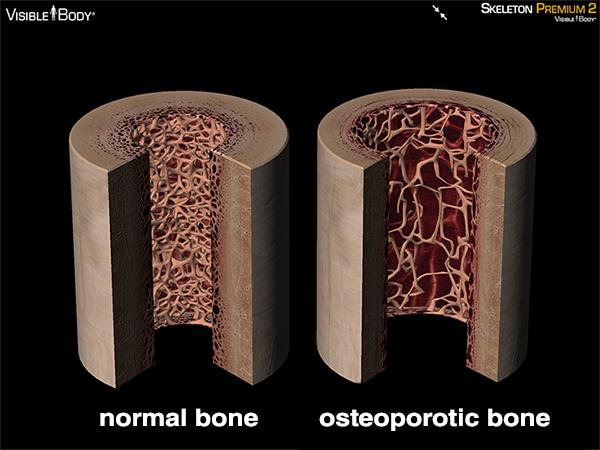 Osteoporotic bone osteoporosis bone damage brittle bones compact bone