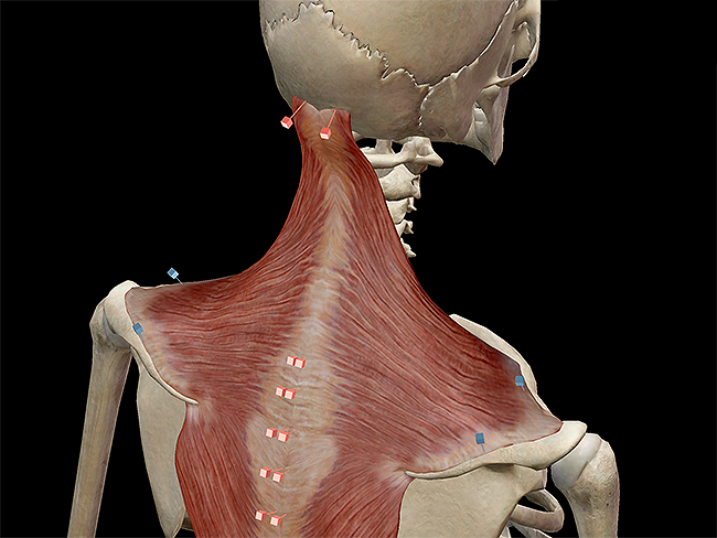 learn muscle anatomy: trapezius, Muscles