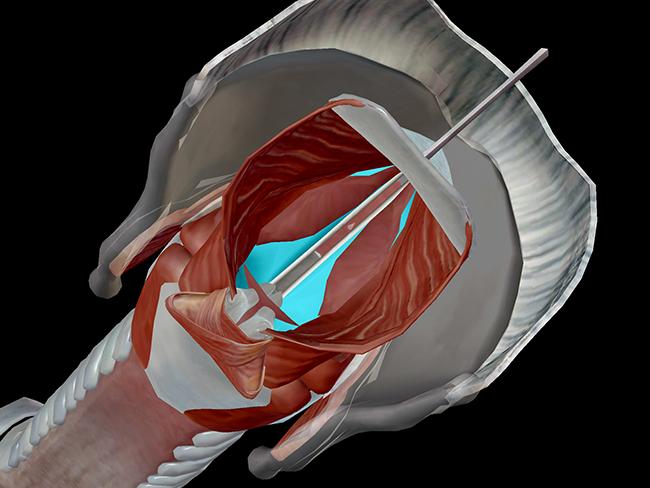 vocalis thyroarytenoid larynx vocal cord