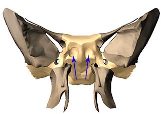 Sphenoid sinuses