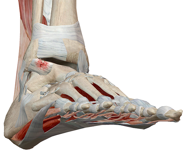 Foot-Pathology-3