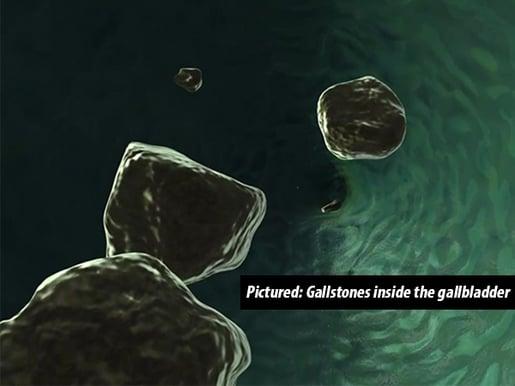 Gallstones within the gallbladder