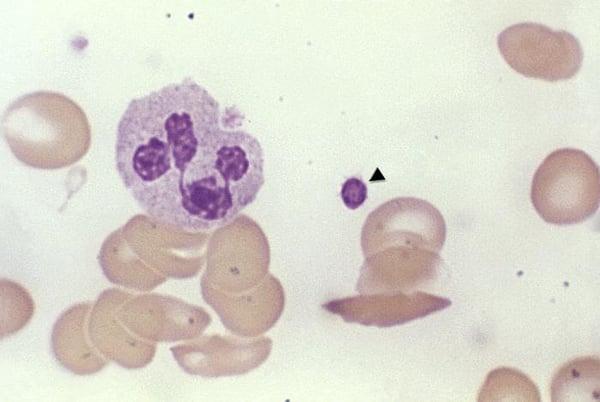 phil-wbc-smear