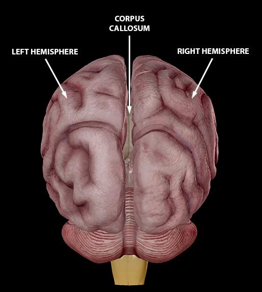brain-cerebrum-hemispheres-corpus-callosum