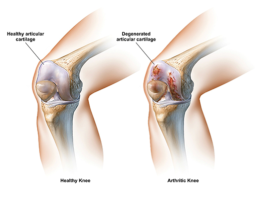osteoarthritis-healthy-vs-arthritic-articular-cartilage