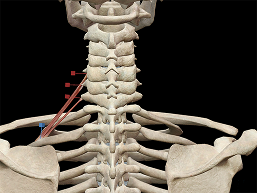 posterior-scalene-muscle-neck-revised