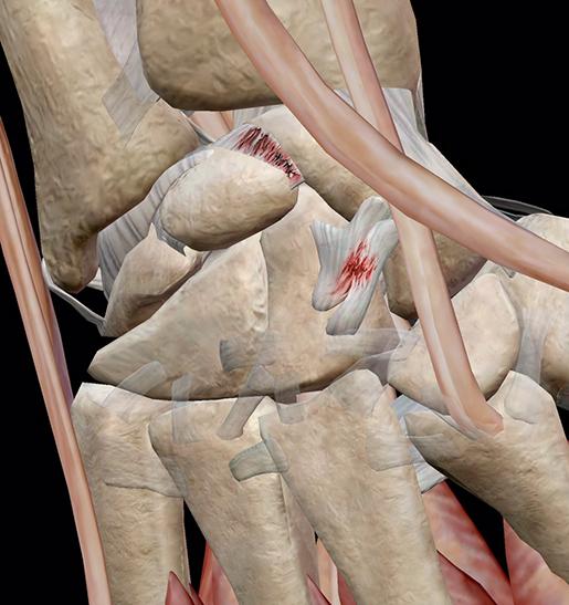 sprains-wrist-closeup