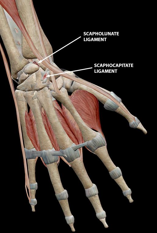 sprains-wrist-scapholunate-scaphocapitate-ligaments