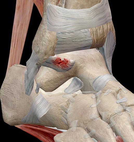 torn-atfl-grade-2-sprain-closeup