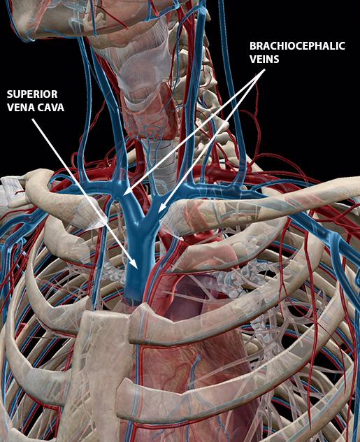 blood-vessels-superior-vena-cava-brachiocephalic-veins