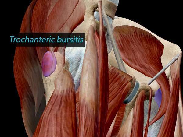Trochanteric bursitis, in context.