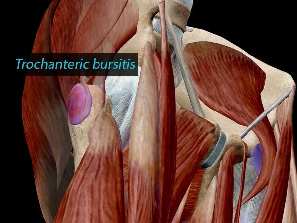 Trochanteric bursitis, in context.