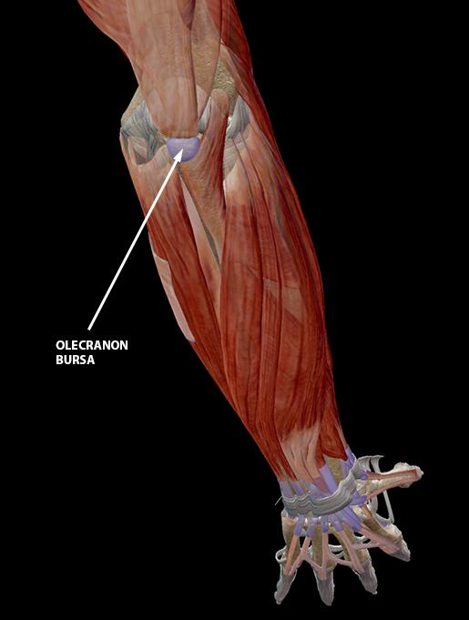 bursitis-elbow-olecranon-bursa-update