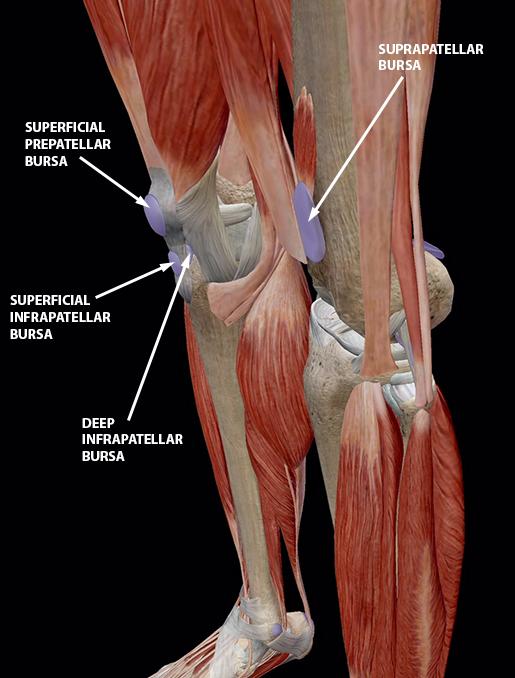 bursitis-knee-bursae-patella-2