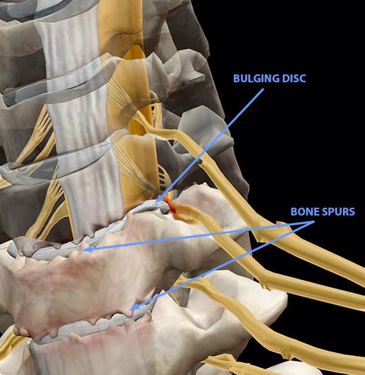 spinal-pathologies-cervical-spondylosis-update