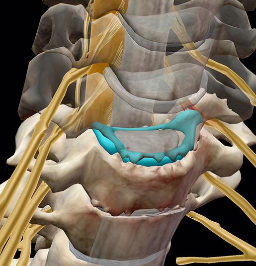 spinal-pathologies-collapsed-bulging-disc
