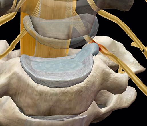 spinal-pathologies-herniated-disc