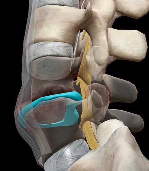 spinal-pathologies-lumbar-spinal-stenosis-update