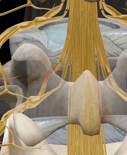 spinal-pathologies-sciatica-pinched-nerve