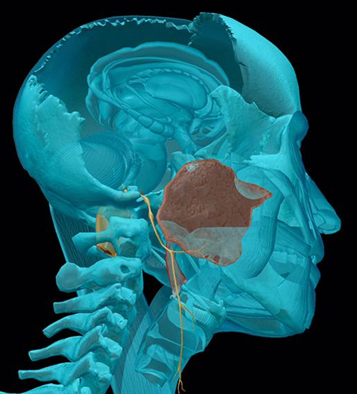 cranial-nerves-09-glossopharyngeal