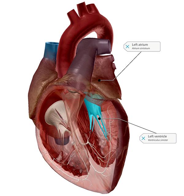 bicuspid-mitral-valve