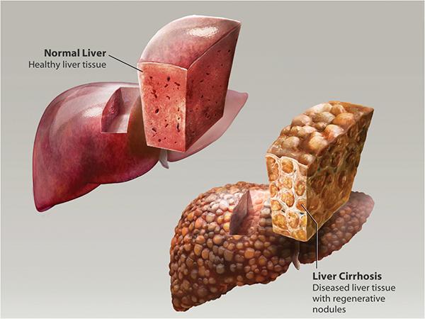 liver-cirrhosis-hepatitis-blog