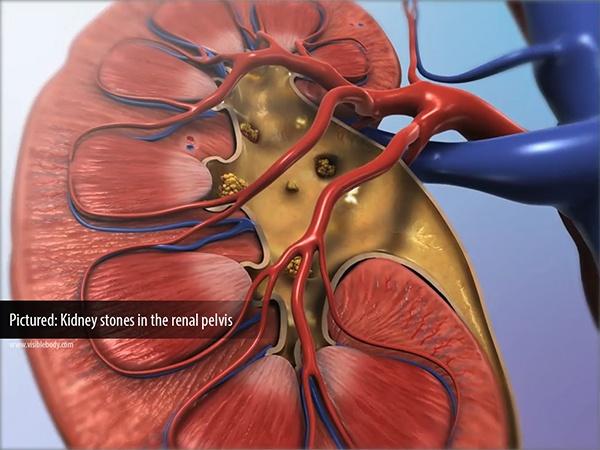 Kidney-Stone-Renal-Pelvis.jpg