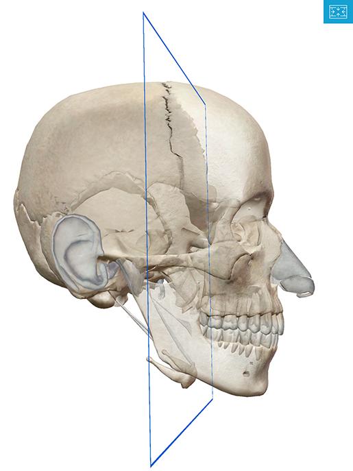coronal-section-3d