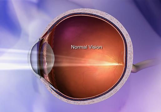 retina-focusing-light-nornal-vision