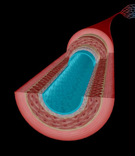 artery-endothelium