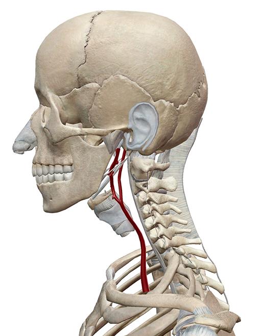 carotid-artery