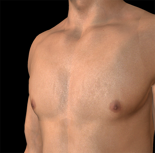 male-breasts-nipples