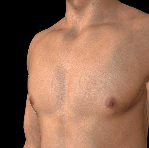 male-breasts-nipples