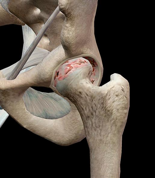 hip-osteoarthritis-degenerated-cartilage-femur-acetabulum