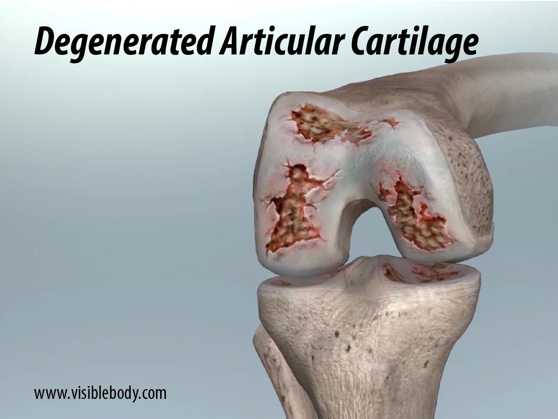 Knee-osteoarthritis-degenerated-articular-cartilage.png