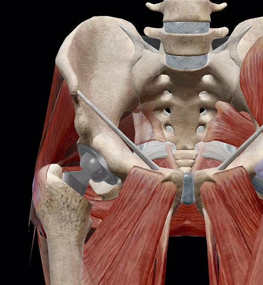 hip-osteoarthritis-hip-replacement