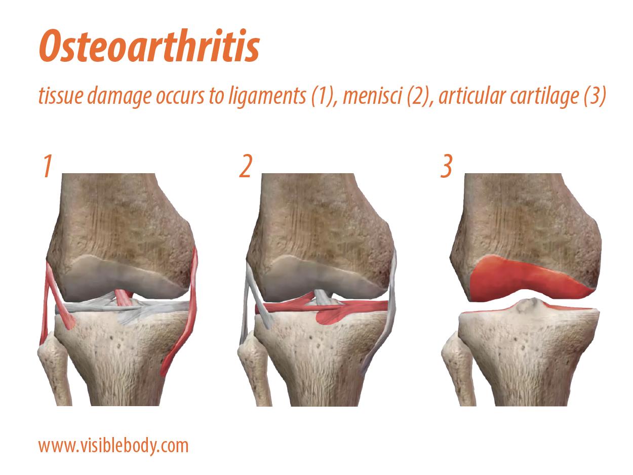 knee-osteoarthritis-tissue-damage.png