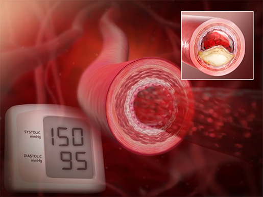 cardiovascular-pathologies-hypertension