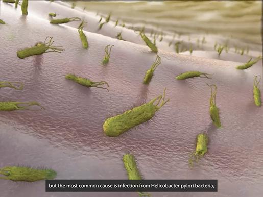 gastrointestinal-pathologies-peptic-ulcer-h-pylori