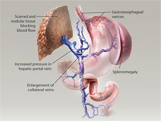 gastrointestinal-pathologies-portal-hypertension-liver-cirrhosis