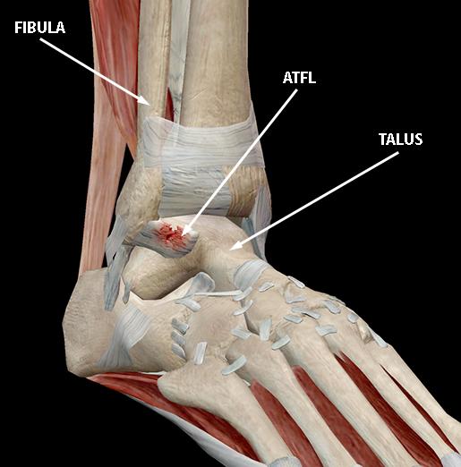 musculoskeletal-pathologies-ankle-sprain