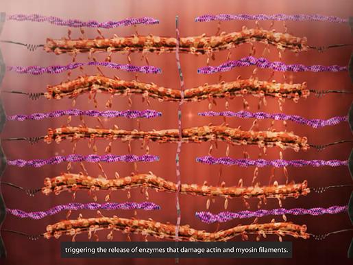 musculoskeletal-pathologies-duchenne-muscular-dystrophy-filaments
