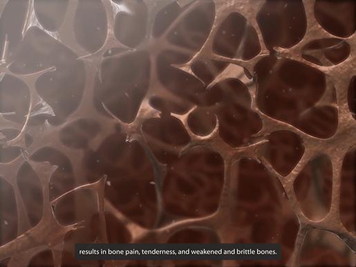 musculoskeletal-pathologies-osteoporosis