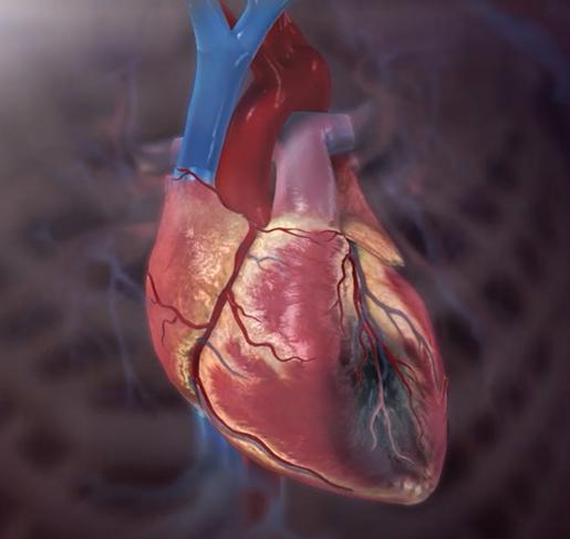 myocardial-infarction-heart-attack-physiology-pathology