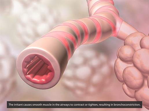 respiratory-pathologies-asthma-bronchoconstriction