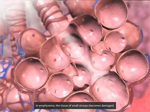 respiratory-pathologies-emphysema