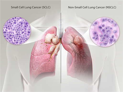 respiratory-pathologies-lung-cancer