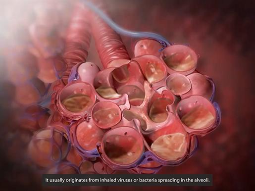 respiratory-pathologies-pneumonia