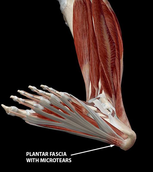 plantar-fasciitis-plantar-fascia-microtears