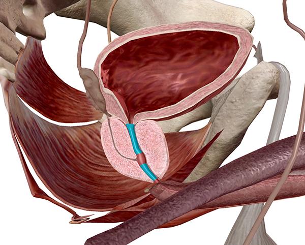 prostate-section-urethra